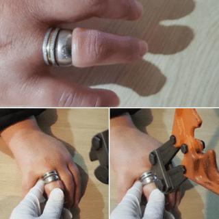 RÍO GALLEGOS: Se le trabó un anillo y tuvo que llamar a los bomberos para que la salven